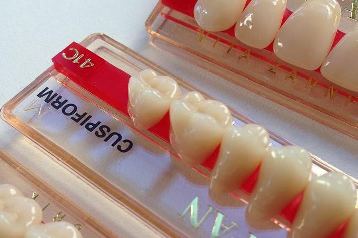Veštački zubi na protezi